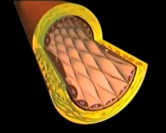 Arterosclerosi-Foto-2