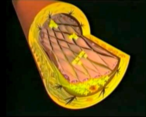 Arterosclerosi-Foto-4