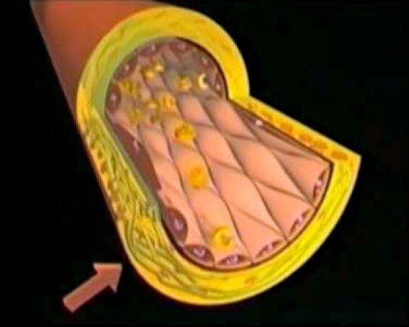 Arterosclerosi-Foto-6