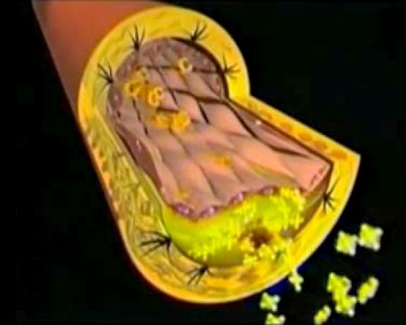 Medicina cellulare in italia video sulle cause delle for Vasi coronarici