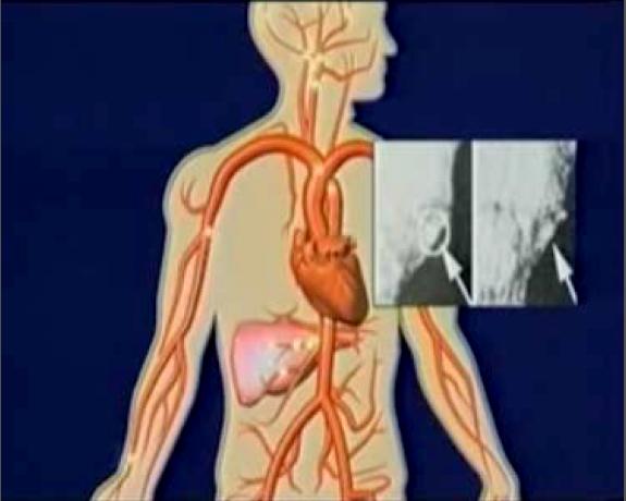 Arterosclerosi-Foto-8