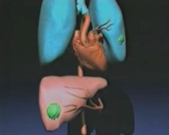 Video-Cancro-Foto-3